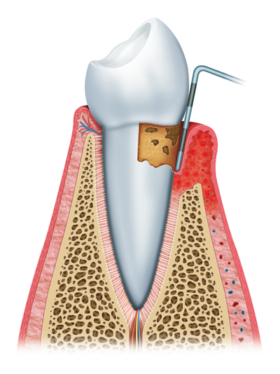 Stages of Gum Disease Dallas and Rockwall, TX