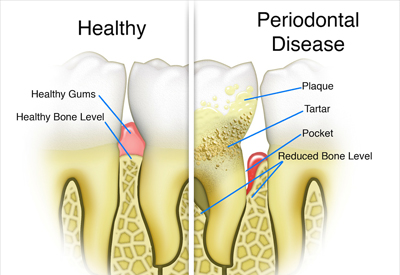 Gum Disease and Tooth and Bone Loss Dallas and Rockwall, TX